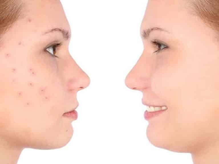 Teen acne solutions