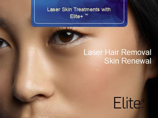 Laser Hair Removal with Elite+™ | Laser hair removal