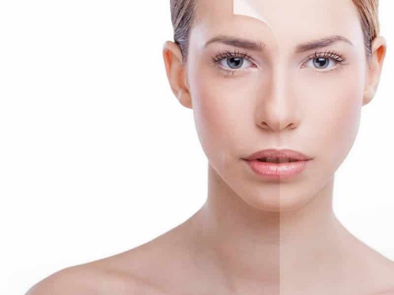 7 Ways To Deal With Pigmentation|Skin Care>Skin Care at Home