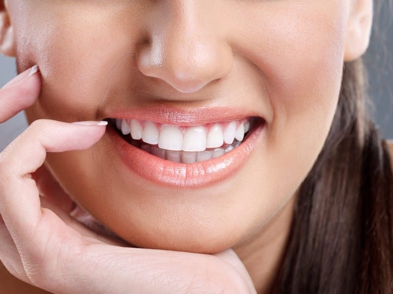 Pros And Cons Of Teeth Whitening: Be First To Find Out!|Advice From Olga Nazarova|Beauty>Teeth Beauty