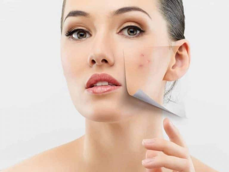 Surprisingly Good News About Acne: The Youth Recipe|Skin Care>Professional Skin Care