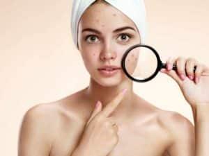 Teenage Acne – How To Beat It? Advice From Olga Nazarova Skin Care>Professional Skin Care