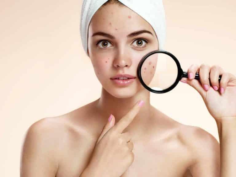 Teenage Acne – How To Beat It?|Advice From Olga Nazarova|Skin Care>Professional Skin Care
