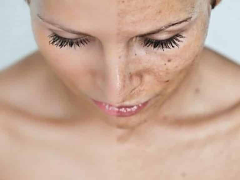3 Types Of Chemical Peels To Know About Beauty